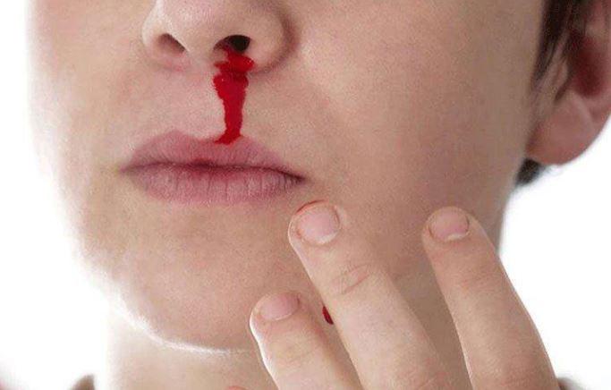 nằm mơ thấy chảy máu mũi